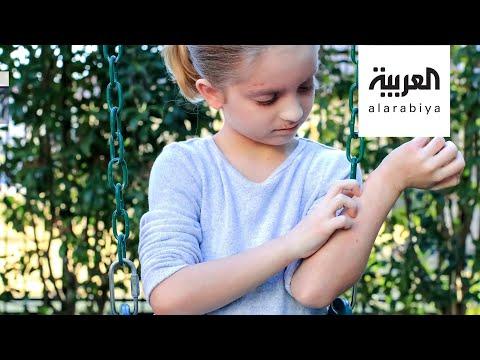 شاهد كيف نتعامل مع إكزيما الأطفال