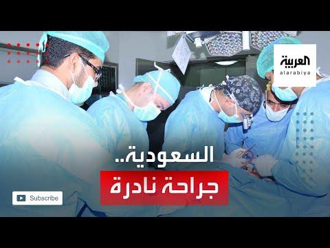 عملية جراحية نادرة لفريق طبي سعودي تعيد قلب طفلة لمكانه