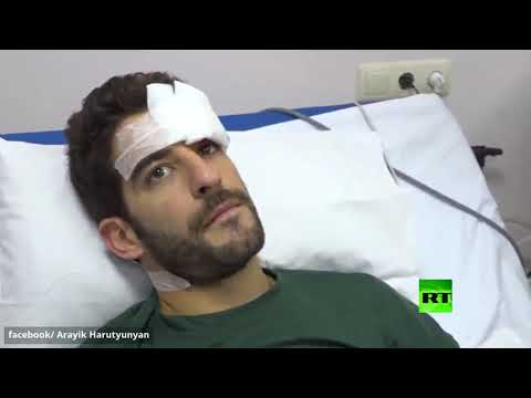 رئيس قره باغ يزور صحافيين مصابين جراء القصف الأذربيجاني