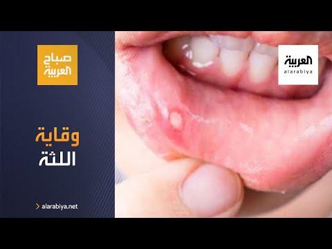 كيف يمكن تفادي أمراض اللثة والقول أنها تعاني من الأمراض