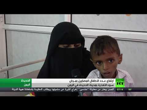 شاهد الحرب اليمنية تتسبب في تفاقم معاناة الأطفال
